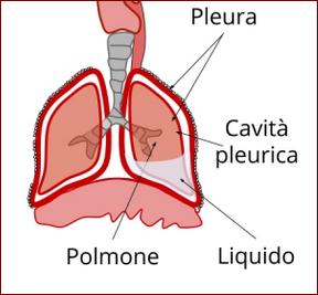 risultato della trasudazione di liquido nella pleura