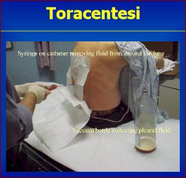toracentesi